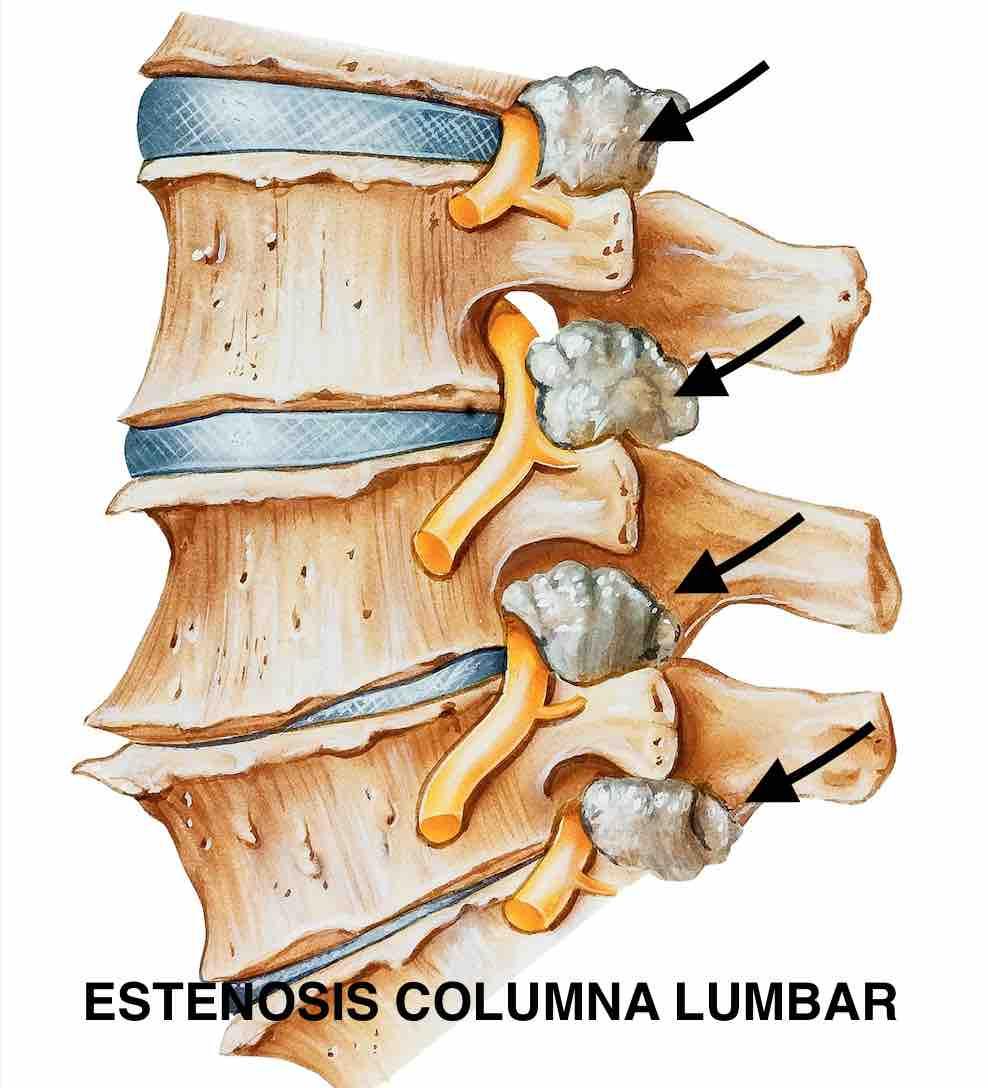 Artrosis columna vertebral