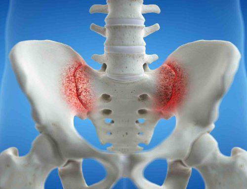 SACROILITIS – SACROILEITIS Dolor o inflamación articulación sacroiliaca